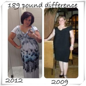 gastric bypass surgery Kimberly