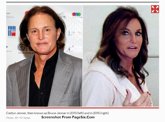 What Happened When Caitlyn Jenner Got Facial Feminization